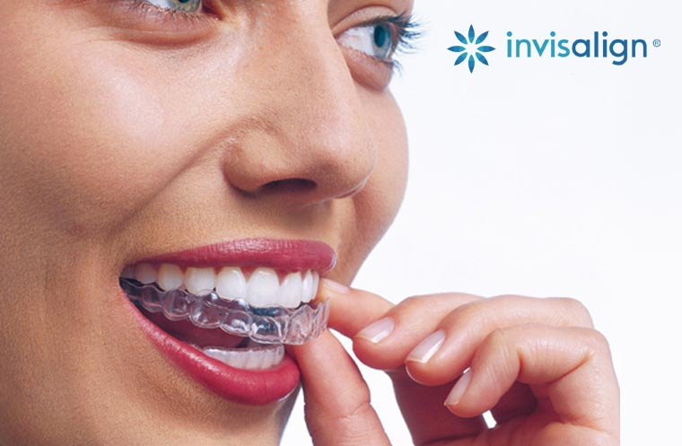 Ortodoncia Invisible Invisalign para Adultos