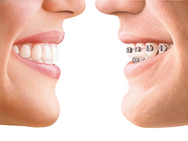 Aparatos de ortodoncia invisible
