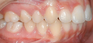 andr_0000_Right Intraoral Photo Final.jpg