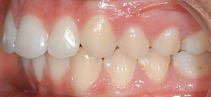 andr_0001_Left Intraoral Photo Final.jpg