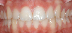 andr_0002_Frontal Intraoral Photo Final.jpg