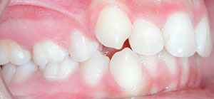 andr_0003_Right Intraoral Photo Antes.jpg