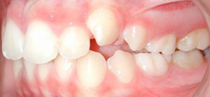 andr_0004_Left Intraoral Photo Antes.jpg