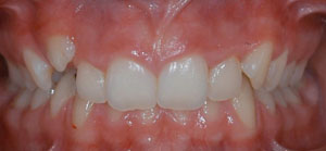 clau_0005_Frontal Intraoral Photo.jpg