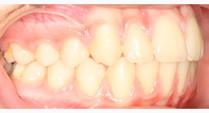jost_0000_Right Intraoral Photo Final.jpg