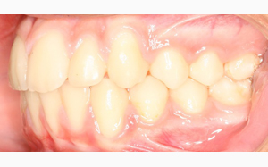 jost_0001_Left Intraoral Photo Final.jpg