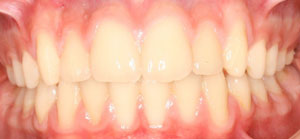 jost_0002_Frontal Intraoral Photo Final.jpg