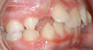 jost_0003_Right Intraoral Photo.jpg