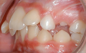 jost_0004_Left Intraoral Photo.jpg