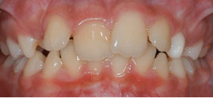 jost_0005_Frontal Intraoral Photo.jpg