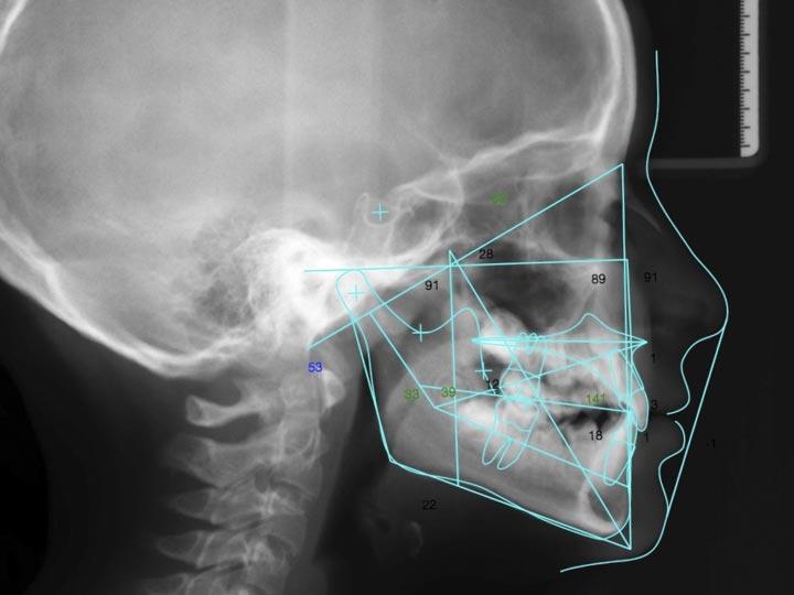 Ortodoncia combinada con cirugía en Vigo