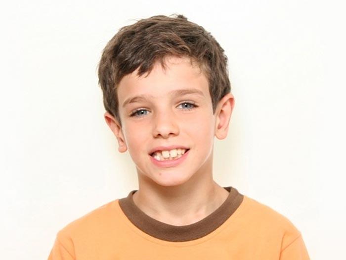 Tratamiento Ortodoncia Fase I para niños