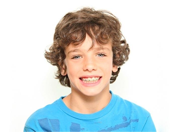 Tratamiento Ortodoncia Fase II para niño