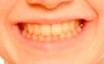 Caso Sonrisas 1