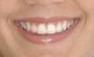 Caso Sonrisas 2