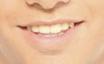Caso Sonrisas 3