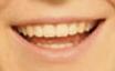 Caso Sonrisas 4