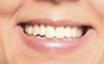 Caso Sonrisas 5