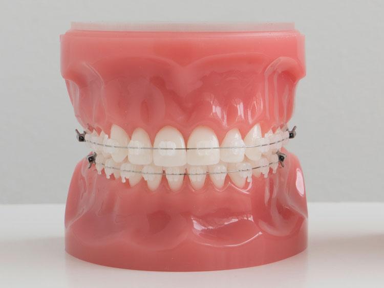 Aparato de ortodoncia con brackets cerámicos
