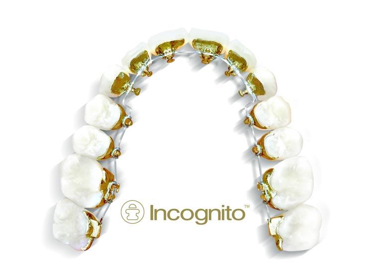 Ortodoncia con brackets por dentro. Incognito en Vigo